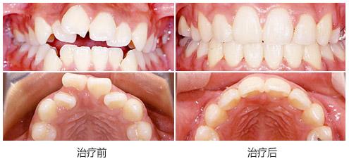 眉山黄记牙科牙齿矫正案例